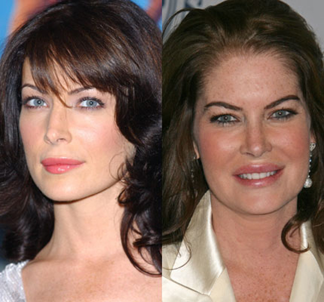 Lara Flynn Boyle Plastic Surgery Before and After Botox Injections