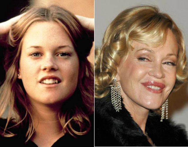 Melanie Griffith Plastic Surgery Before and After Botox Injections