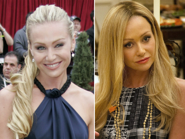 Portia de Rossi Plastic Surgery Before and After Botox Injections