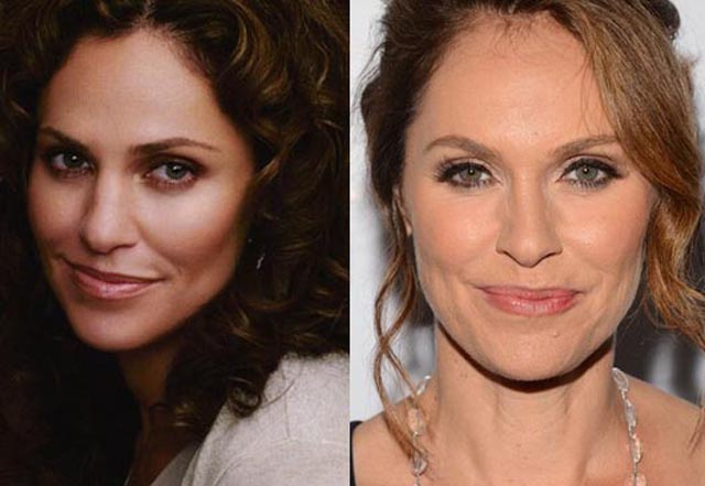 Amy Brenneman Plastic Surgery Before and After Botox injections