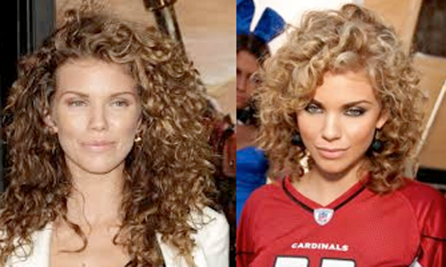 AnnaLynne McCord Lip Augmentation Plastic Surgery Before and After