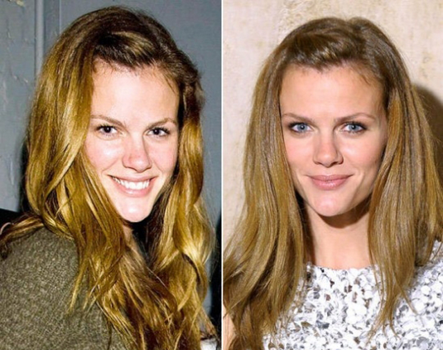 Brooklyn Decker Nose Job Plastic Surgery Before and After