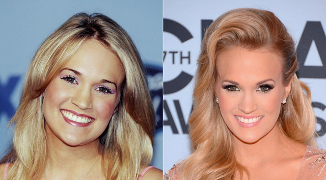 Carrie Underwood Nose Job Plastic Surgery Before and After