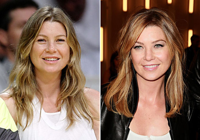 Ellen Pompeo Plastic Surgery Before and After Botox Injections