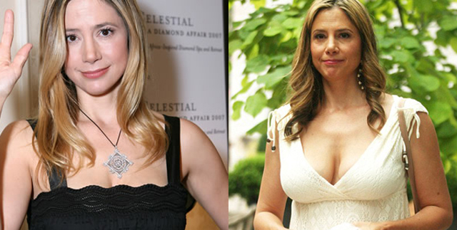 Mira Sorvino Breast Implants Plastic Surgery Before and After