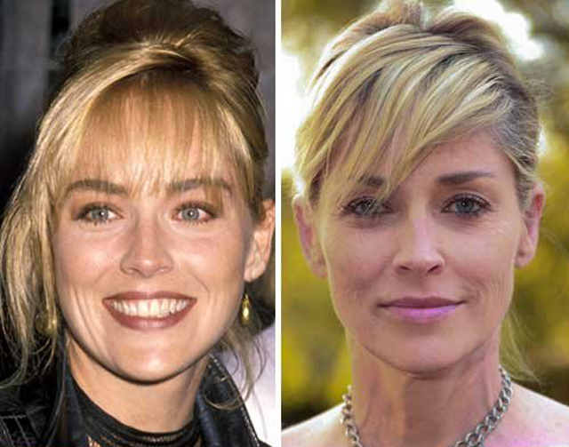 Sharon Stone Facelift Plastic Surgery Before and After
