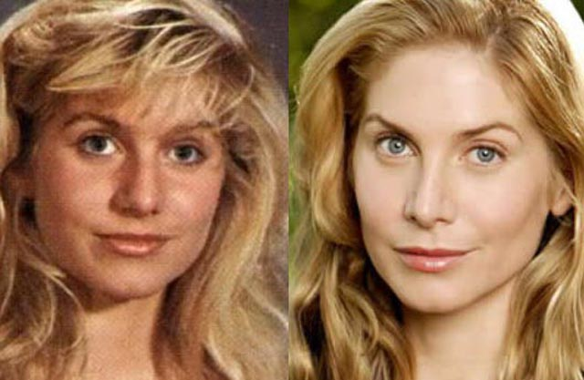 Elizabeth Mitchell Nose Job Plastic Surgery Before and After