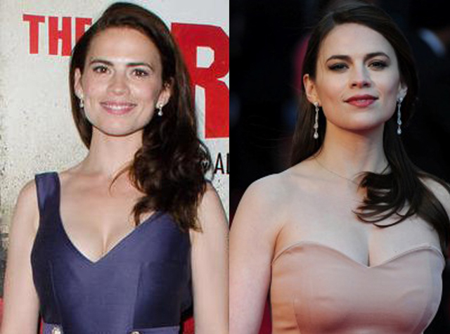 Hayley Atwell Breast Augmentation Plastic Surgery Before and After