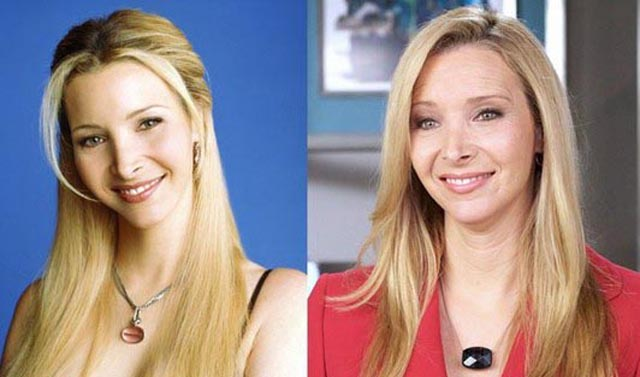 Lisa Kudrow Plastic Surgery Before and After Botox Injections