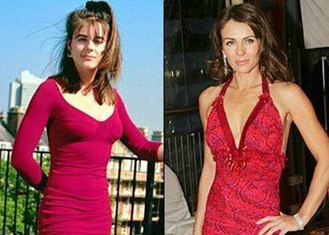 Elizabeth Hurley Breast Augmentation Plastic Surgery Before and After