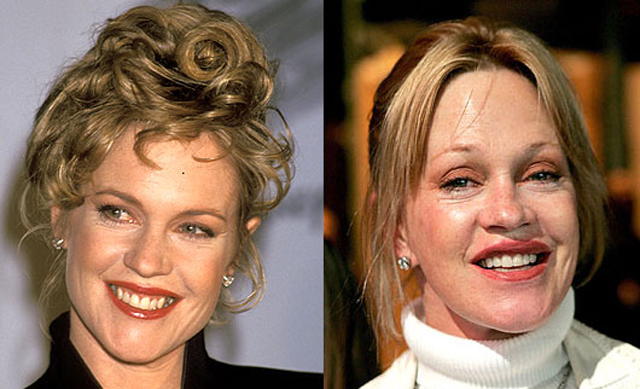 10 Celebrities Ruined By Plastic Surgery Celebie