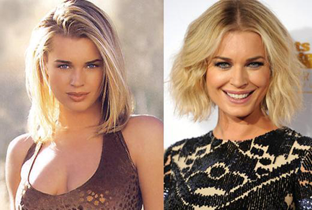 Rebecca Romijn Plastic Surgery Before and After Botox Injections