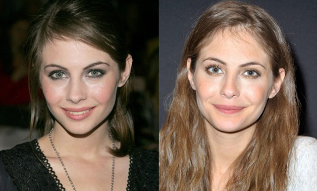 Willa Holland Plastic Surgery Before and After Botox Injections