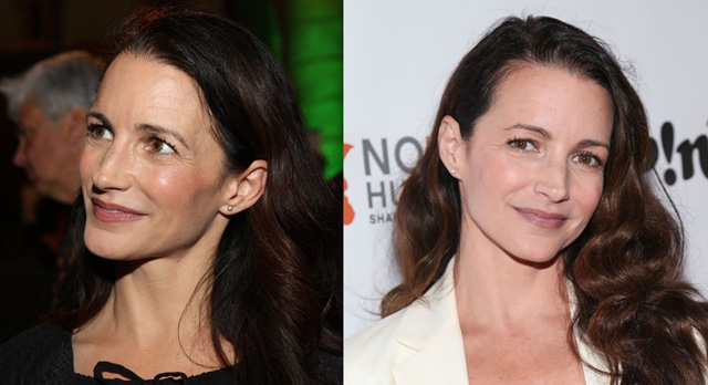 Kristin Davis Plastic Surgery Before and After Botox Injections
