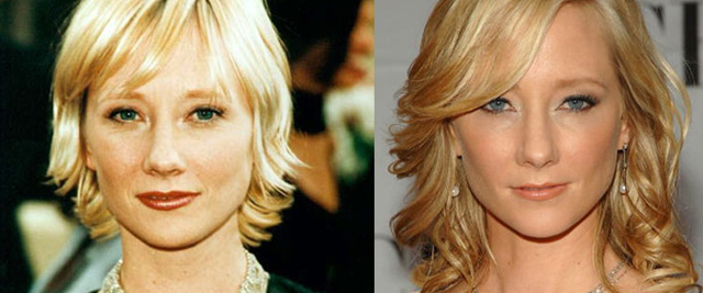 Anne Heche Nose Job Plastic Surgery Before and After
