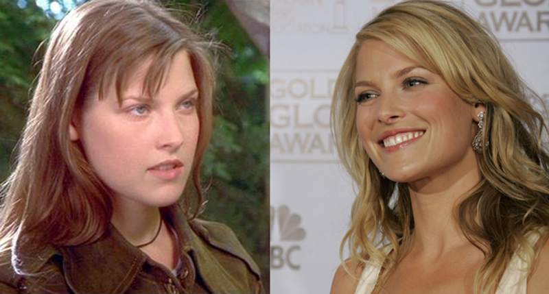 Ali Larter Plastic Surgery Before and After