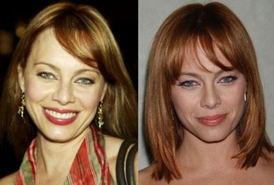 Melinda Clarke Plastic Surgery Before and After