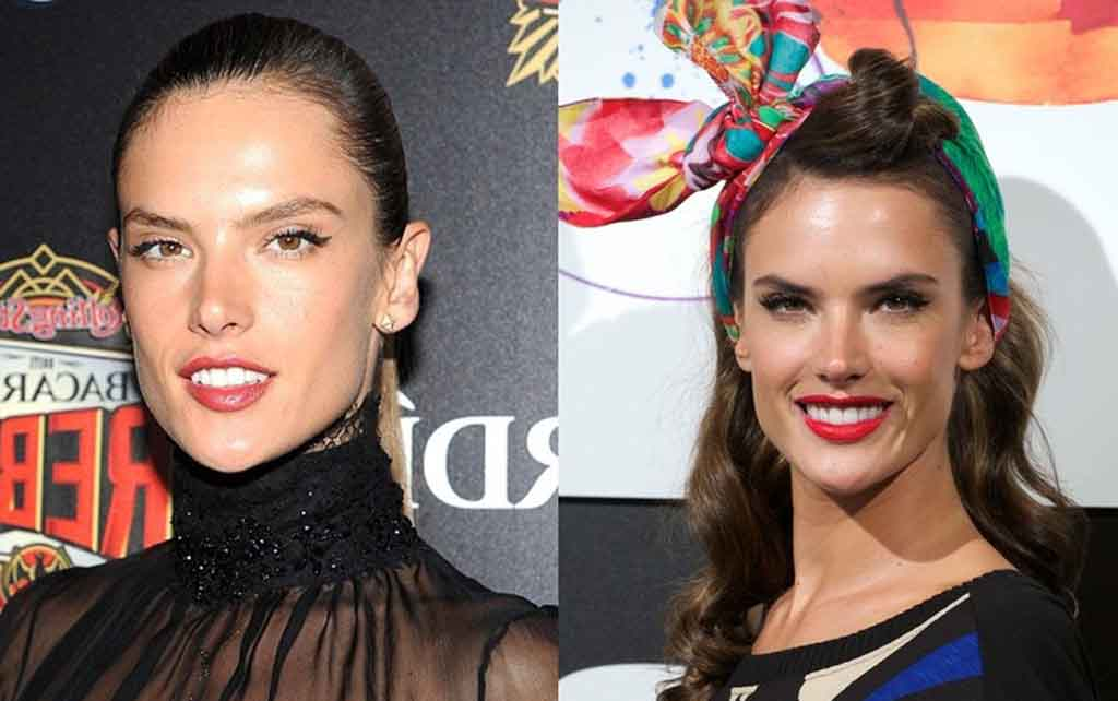 Alessandra Ambrosio Plastic Surgery Before And After
