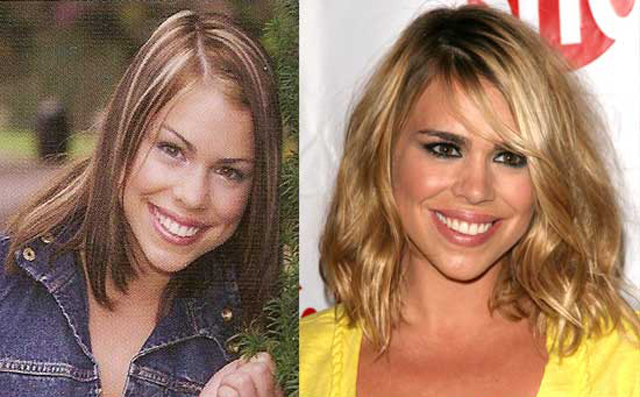 Billie Piper Plastic Surgery Before and After