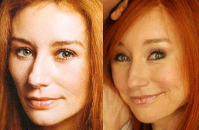 Tori Amos Plastic Surgery Before and After