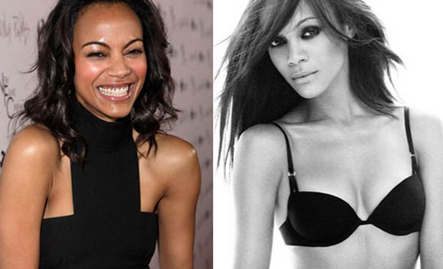 Zoe Saldana Plastic Surgery Before and After