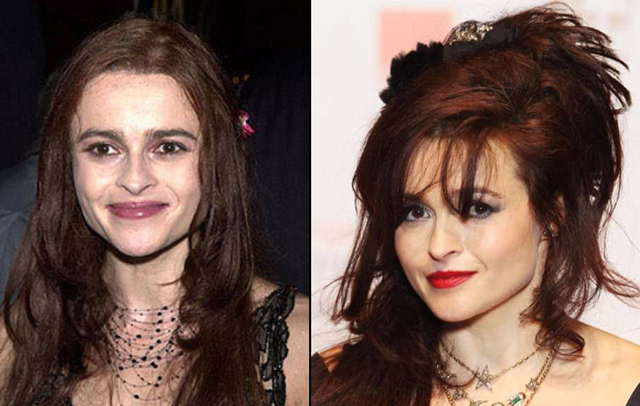 Helena Bonham Carter Plastic Surgery Before and After