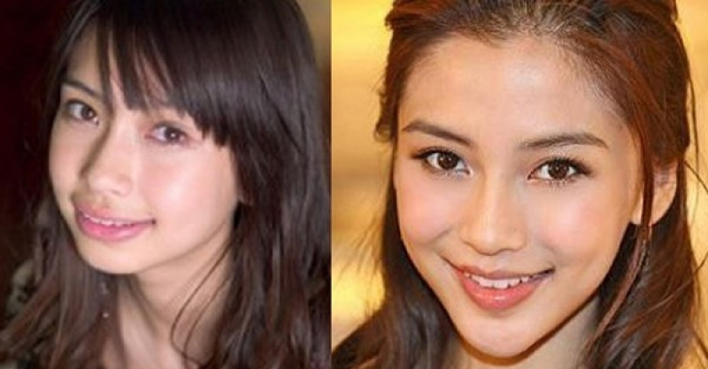 Angelababy Plastic Surgery Before and After