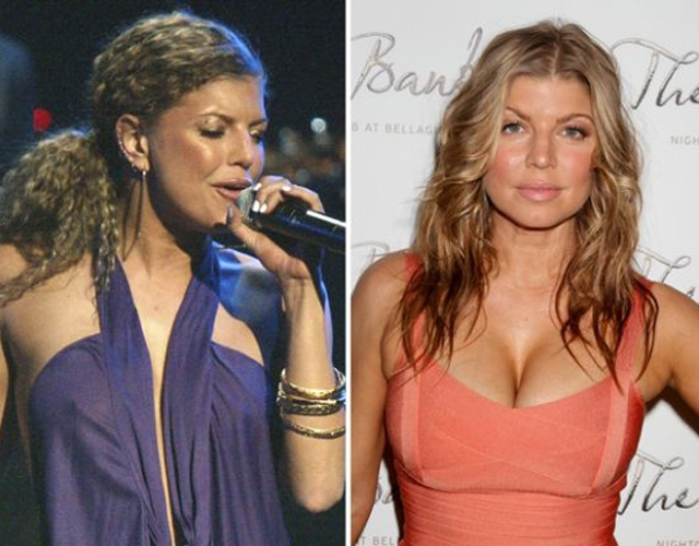 Fergie Breast Augmentation Plastic Surgery