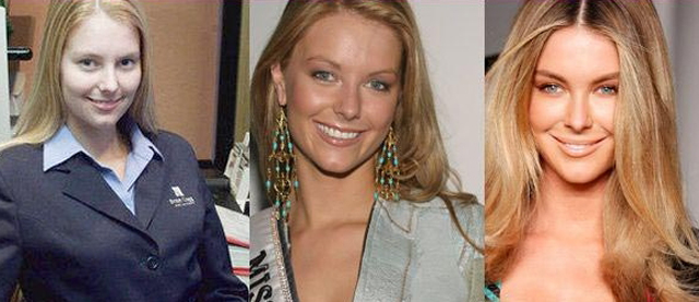 Jennifer Hawkins Plastic Surgery Before and After