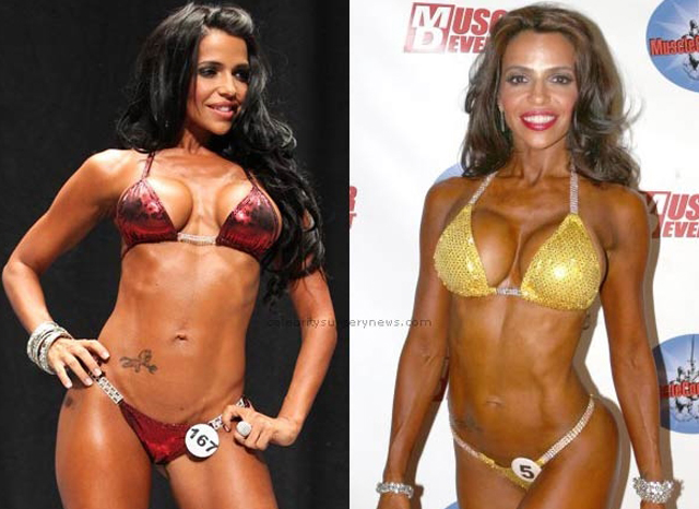Vida Guerra Plastic Surgery Before and After