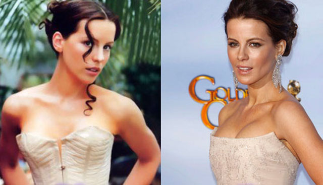 Kate Beckinsale Breast Implants Plastic Surgery Before and After   Celebie